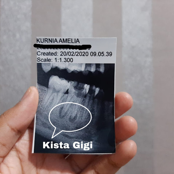 Operasi Kista Gigi