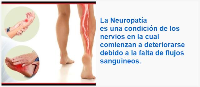 La Neuropatía es una condición de los nervios en la cual comienzan a deteriorarse debido a la falta de flujos sanguíneos