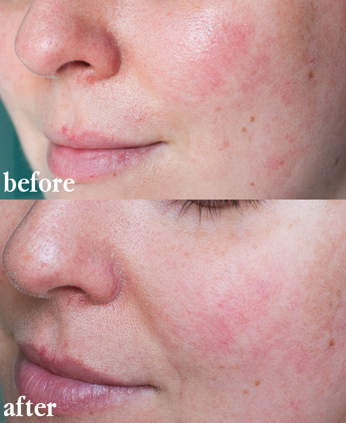 vitamin c skincare on rosacea skin