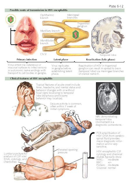 HERPES SIMPLEX VIRUS ENCEPHALITIS