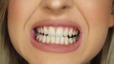 Ovine Mouth Sore Virus