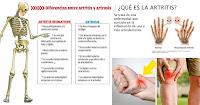 https://steviaven.blogspot.com/2018/06/aprende-aliviar-los-sintomas-artritiss.html