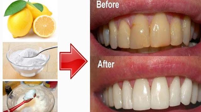 Gigi Putih Cemerlang Hanya Dalam Waktu 1 Menit