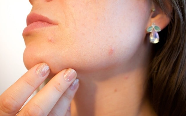 common skin issues consult dermatologist skin care problems acne psoriasis eczema