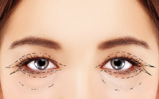 Is blepharoplasty surgery right for you?