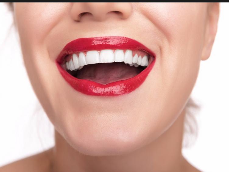 10 Cara Terbaik Memutihkan Gigi Tips Gigi Putih Berseri