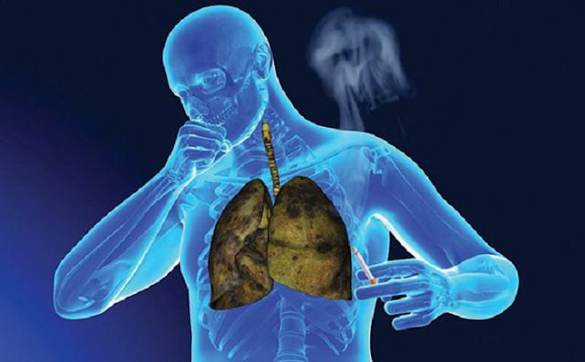 Tác dụng chữa bệnh ung thư của cây xạ đen