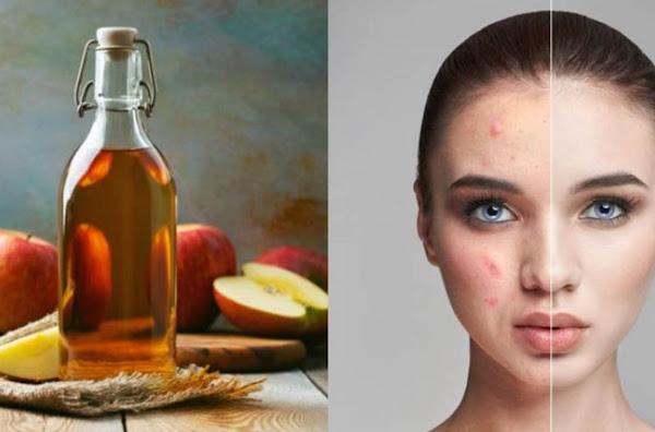 Manfaat Cuka Apel untuk Menghilangkan Bruntusan di Wajah