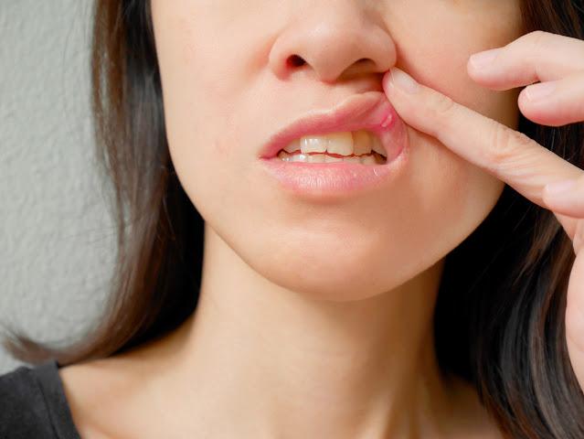 Remediu pentru Ulcerul bucal (stomatita aftoasă) facut acasa