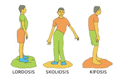 kelainan organ gerak manusia lordosis, skoliosis, dan kifosis www.simplenews.me