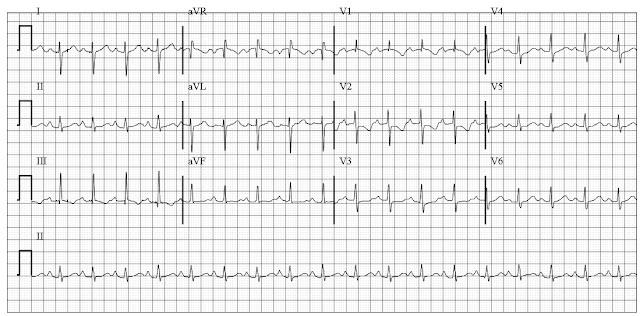 Right heart strain EKG
