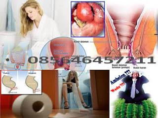 Tips Sehat Wasir Tanpa Obat Dokter