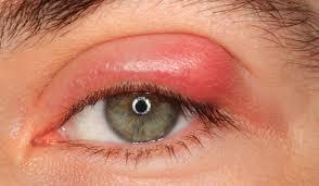 علاج الكيس الدهني في العين واسبابه والمخاطر المحتملة بعد الجراحة