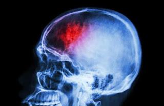 Photo of اختراق الدماغ إلكترونيًا.. هل هذا ممكن