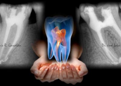 Pero, ¿cómo saber si os han hecho una endodoncia correctamente?