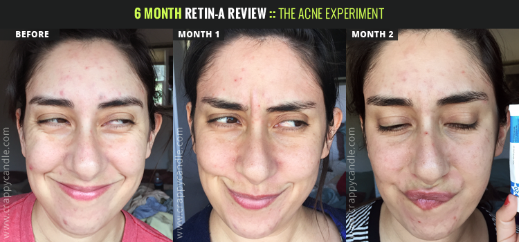 6 Month Retin-A Review - The Acne Experiment | Crappy Candle