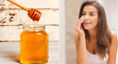 trouvez des remèdes naturels pour l'acné