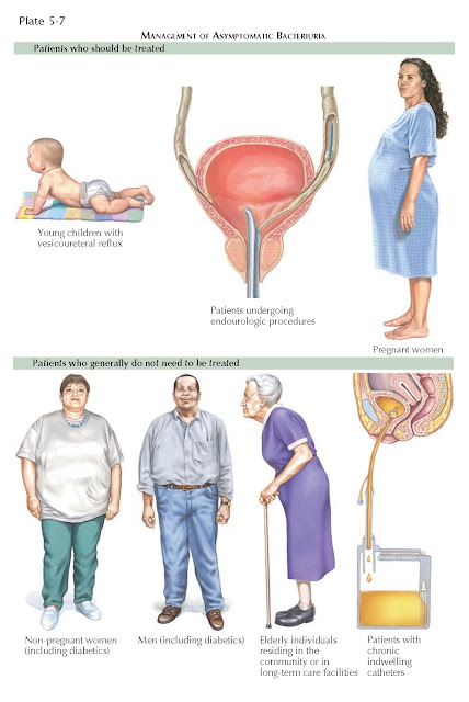 MANAGEMENT OF ASYMPTOMATIC BACTERIURIA