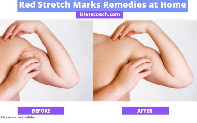 How to get rid of red stretch