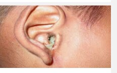 Prevention and treatment of otitis media