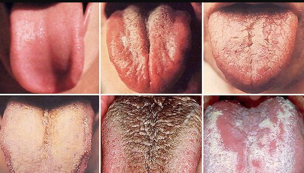 Color Of Tongue Can Reveal Cancer