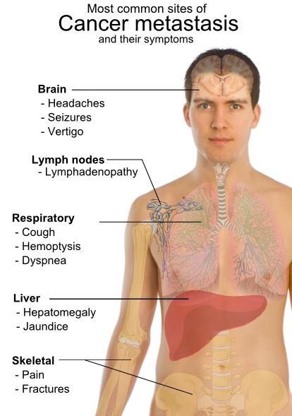 Image Result For Metastatic Liver Cancer Symptoms