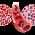 What is Leukemia
