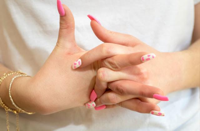 هل طقطقة الاصابع تعمل التهاب