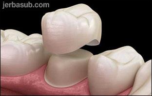 اسعار تلبيس الاسنان في الرياض