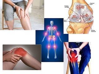Ramuan Obat Nyeri Sendi Lutut Dari Bahan Herbal