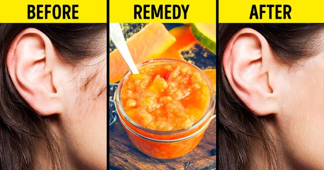 9 Cara Alami Untuk Menghilangkan Bulu di Wajah