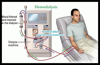 Bagaimana cara kerja alat cuci darah ( hemodialisa ), ini penjelasannya 1