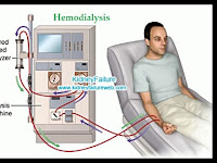 Bagaimana cara kerja alat cuci darah ( hemodialisa ), ini penjelasannya