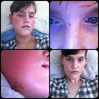 Orthognathic surgery recovery blog swelling pain jaw surgery double jaw surgery recovery room corrective jaw surgery underbite to overbite pain swelling maxillofacial braces girl blog 2013