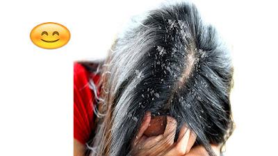 تدوينة الصحة سيدتي : قي هذه تدوينة ستتعرفين ياسيدتي عن اهم طرق ازالة القشرة من الشعر