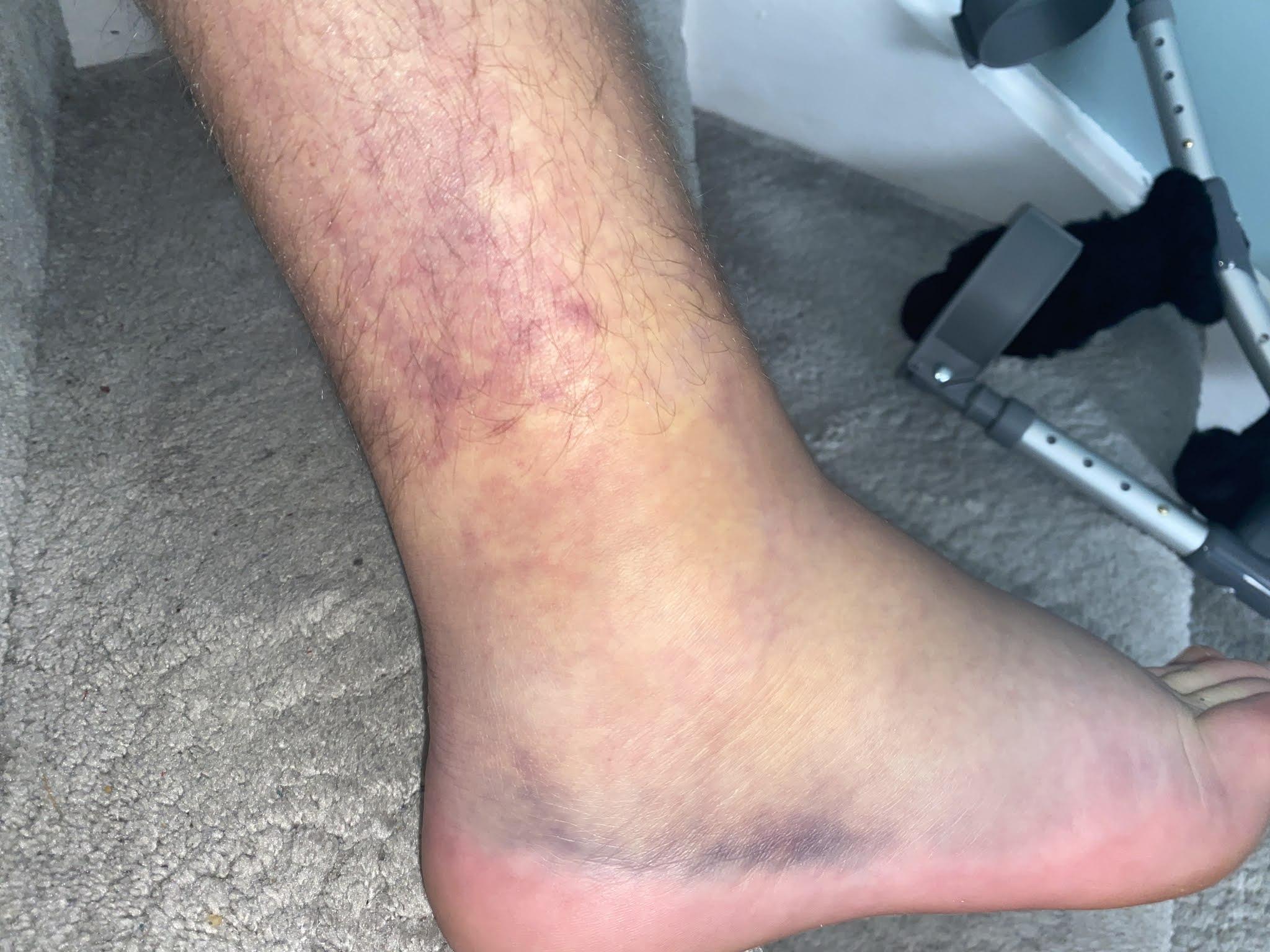 a swollen foot