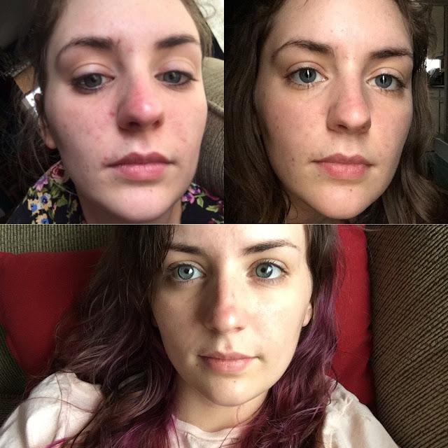 Pourquoi faire une routine de beauté pour la peau et comment ?