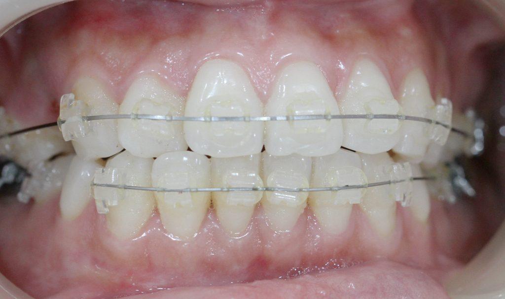Kết quả hình ảnh cho cần phải đeo khí cụ niềng răng trong một