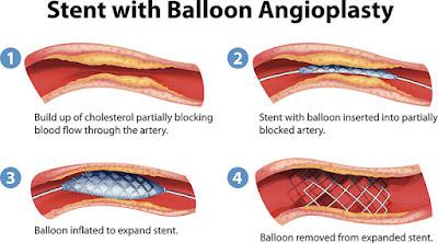 balloon-agioplasty