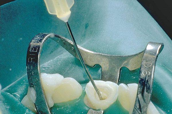 نصائح في إرواء وغسل الأقنية الجذرية للأسنان