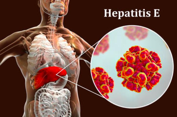 Apa itu Hepatitis E, Penyebab,Gejala dan cara mengobatinya