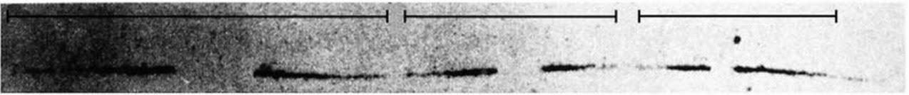 Biology Write Up Biology Articles Assay For Bidirectional Replication Of Dna Prokaryotic Replication Pattern Theta Replication Autoradiograph For Theta Replication Radio Thymidine Experiment Eukaryotic Replication Pattern Pulse Method