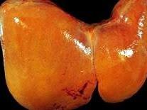 Cách phòng bệnh gan nhiễm mỡ