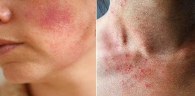 Cicaplast B5 thích hợp nhất cho các trường hợp kích ứng dữ dội, da khô sau khi dùng treatment, cháy nắng, chàm da...