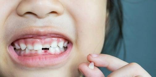 Cara Mencabut Gigi Yang Tumbuh di Gusi di Klinik Gigi Terdekat