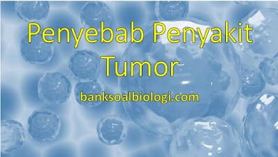 7 Faktor Penyebab Penyakit Tumor atau Kanker