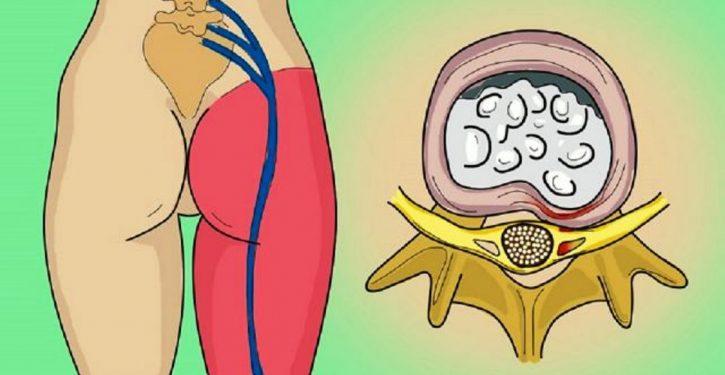 A Sciatic Nerve