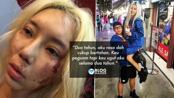 DJ Terkenal Malaysia Dedah Detik Hitam Jadi 'Punching Bag' Boyfriend Psycho