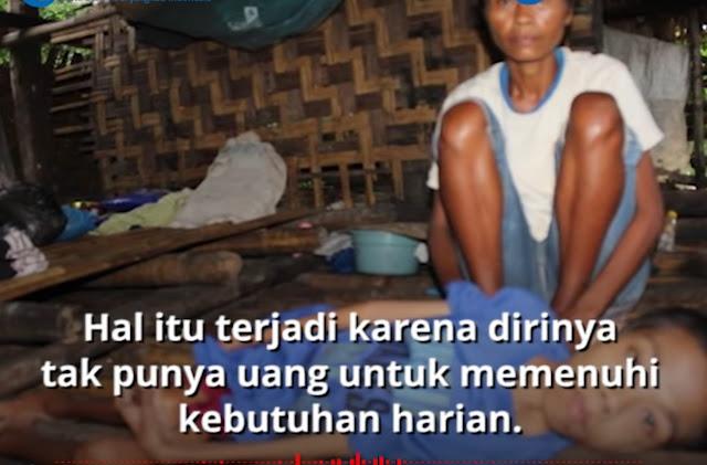 Kisah Pilu Wanita di NTT, Makan Sehari Sekali, 2 Anaknya Alami Gizi Buruk, hingga Tinggal di Gubuk