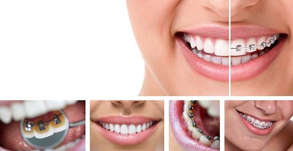 Get to know the types of braces